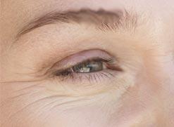 The Fraxel Dual Wavelength System - non invasive laser skin resurfacing. 2
