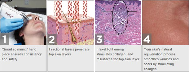 The Fraxel Dual Wavelength System - non invasive laser skin resurfacing.