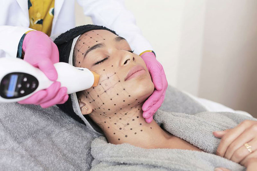 A female patient undergoing the skin tightening procedure.