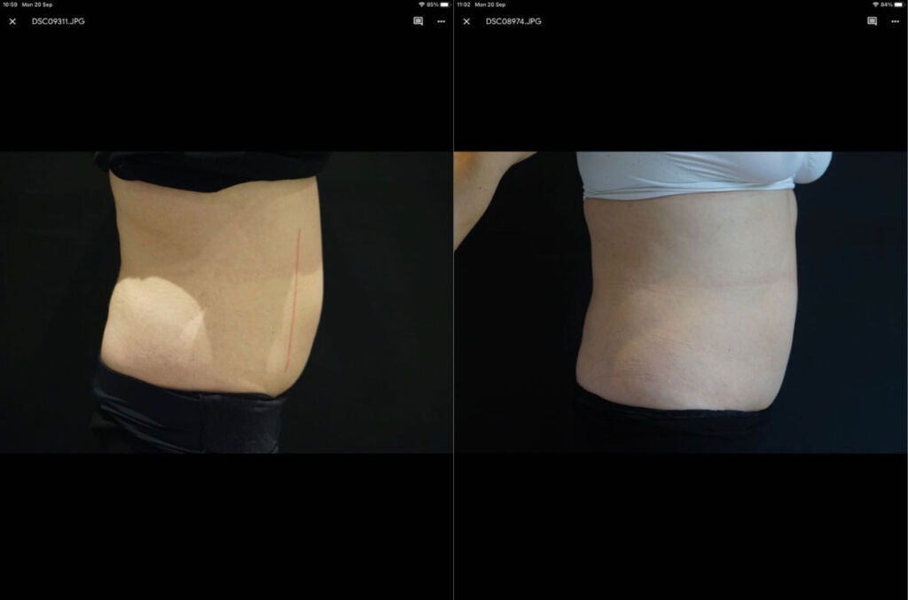 Before and after shot following a treatment